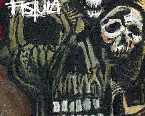 fistula-shape-of-doom